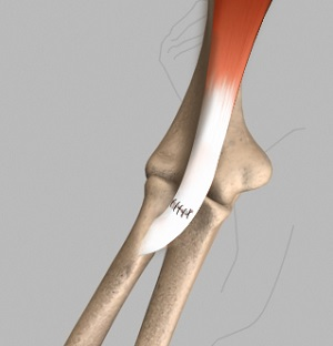 Distal Biceps Repair