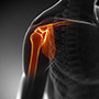 Ultrasound-Guided Shoulder Injections